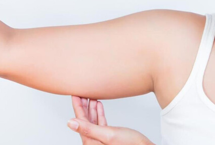 Picture of a woman facing the camera and happy with the perfect arms liposuction procedure she had at Top Plastic Surgeons in beautiful San Jose, Costa Rica.  She is wearing a white top and holding her hand to one arm,  showing the area of the surgery.